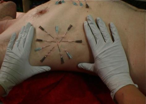 needle2.jpg